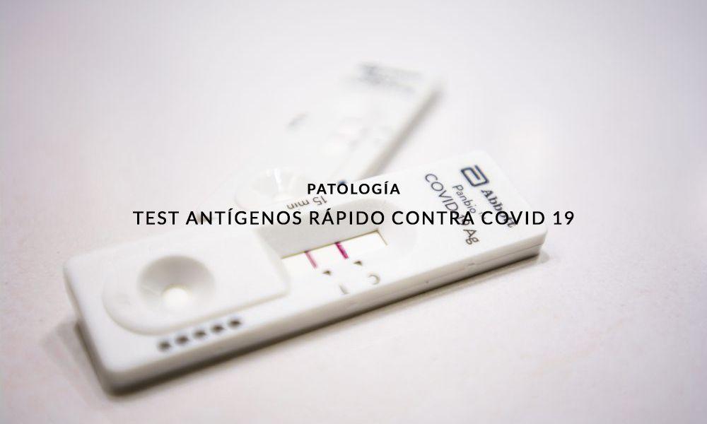 test-AUTO-COVID-19-ANTIGENOS-FARMACIA-PEREZ-VAZQUEZ